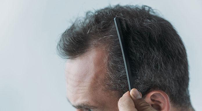 Jak bezpiecznie odzyskać fryzurę przy przerzedzonych włosach i łysieniu