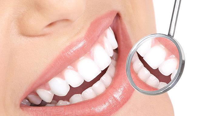 zadbać o zęby